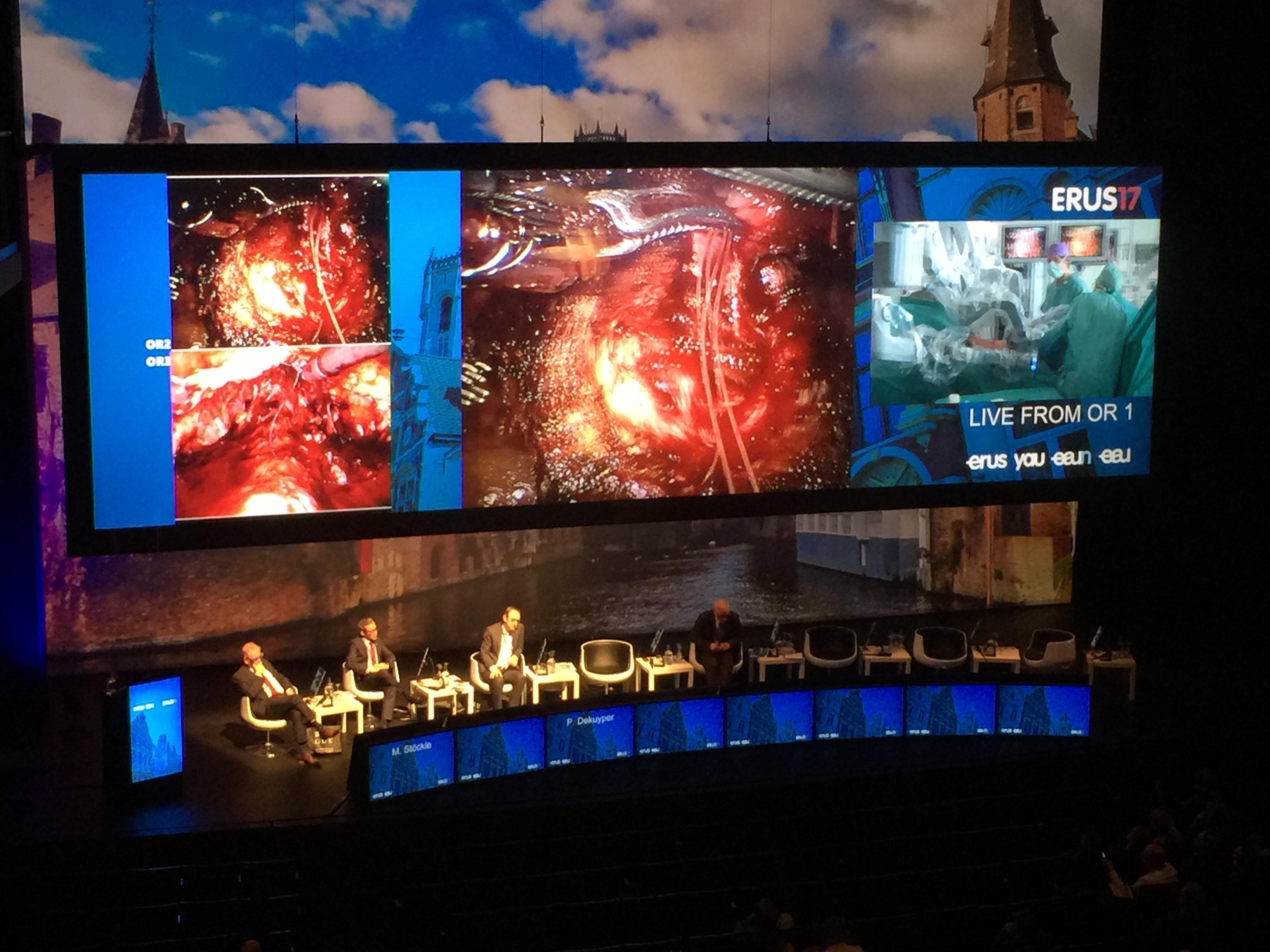 Live surgeries tijdens congres in Brugge